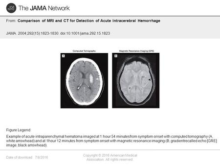 Date of download: 7/8/2016 Copyright © 2016 American Medical Association. All rights reserved. From: Comparison of MRI and CT for Detection of Acute Intracerebral.
