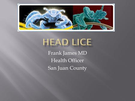 Frank James MD Health Officer San Juan County.  Adults are 2-3 mm long. Infest the head and neck and attach their eggs to the base of the hair shaft.
