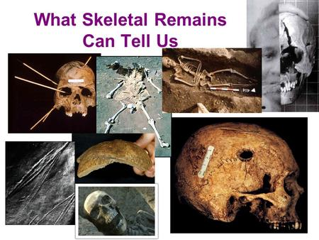 What Skeletal Remains Can Tell Us. What can be determined from skeletal remains? 1) Sex 2) Race 3) Height 4) Age.