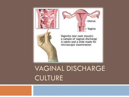VAGINAL DISCHARGE CULTURE. Specimen processing for Vaginal swab.