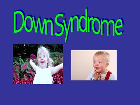 What it is. Down Syndrome is a congenital disorder in which the genetic material causes an abnormal development of children and often leads to mental.