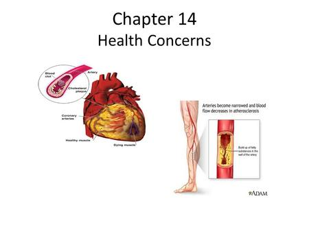 Chapter 14 Health Concerns. Cardiovascular Disease Atherosclerosis-narrowing of the coronary arteries. Dyslipidermia-abnormal blood proteins, LDL or HDL.