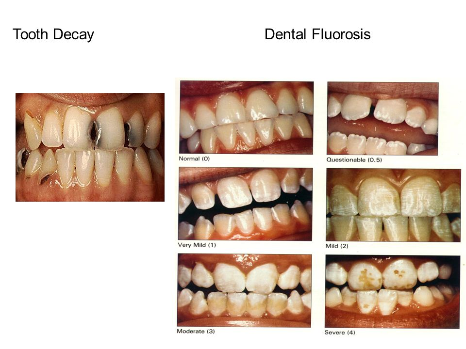 National Research Council Report – Fluoride in Drinking Water (2006)  The Committee considered three toxicity end points for which there were sufficient relevant data for assessing the adequacy of the MCLG for fluoride to protect public health:  severe enamel fluorosis,  skeletal fluorosis, and  bone fractures.