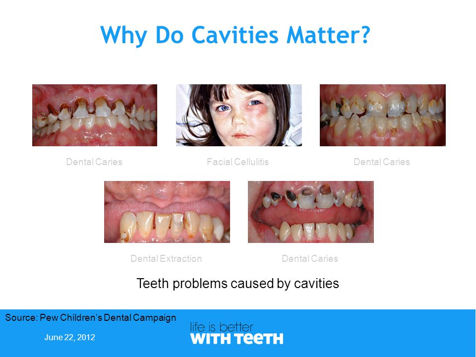 Goal #5: Reduce the prevalence of dental caries among NYS children.