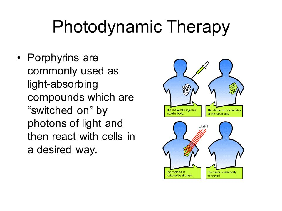 Photodynamic Therapy Photodynamic therapy (PDT) -fiber optic surgery A photosensitive drug absorbed by cancer cells can be activated by a laser beam guided through optical fibers to selectively destroy a tumor.