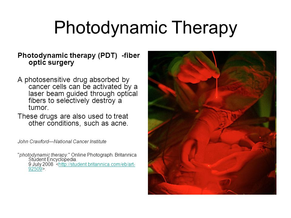 As an anticancer agent in photodynamic therapy Cancer typeGross incidence pa Suitable for PDT Head and neck (oral cavity, larynx, pharynx and oesophagus 150,000 w/w based upon a US incidence of 17.7 per 100,000 Estimated 10% = 15,000 Lung cancer 500,000 w/w based upon a US incidence of approximately 170,000 Estimated 10% = 50,0000 Bladder 150,000 based upon a US incidence of 53,0005% = 7,500 Gastric Second most common cancer in Far East 120,000 pa in Japan.