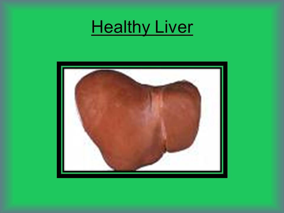 Liver On Steroids