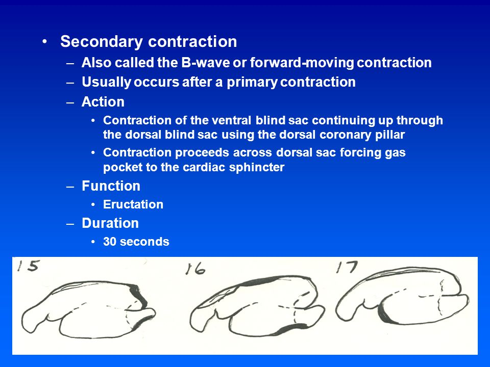 Incidence of pressure waves Contraction Activity D DV DSV DVSV Feeding 1 27 5 56 Resting 10 35 25 22 Ruminating 22 28 37 6 Reticulum Cranial sac