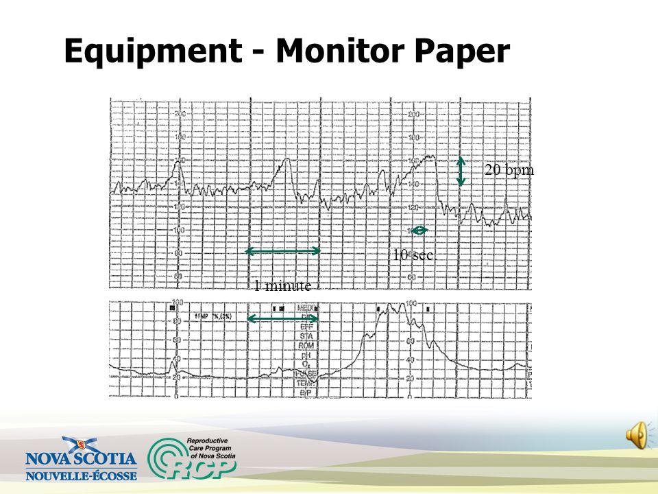 1 minute 10 sec. Equipment - Monitor Paper 20 bpm