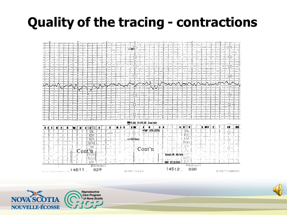 Quality of the tracing - contractions Cont'n