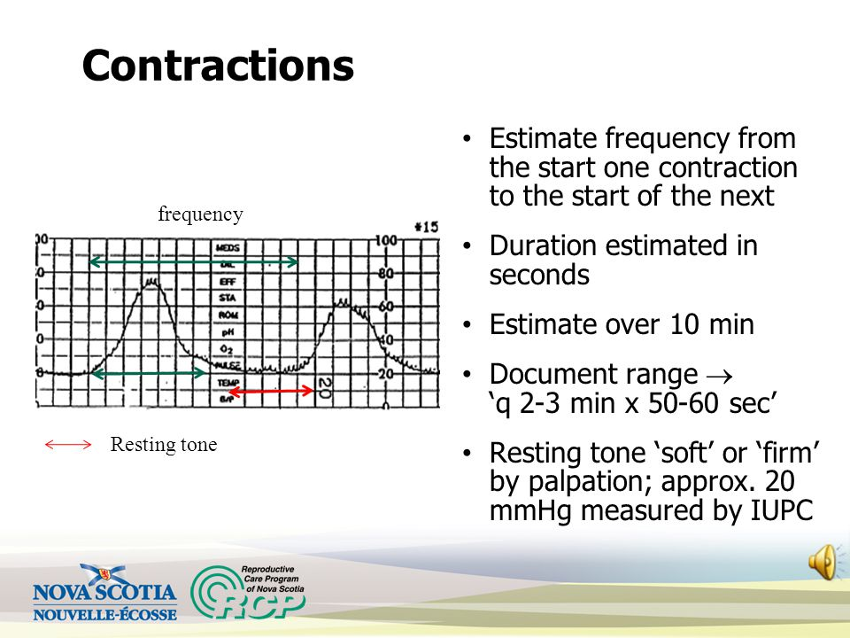 Contractions Estimate frequency from the start one contraction to the start of the next Duration estimated in seconds Estimate over 10 min Document range  'q 2-3 min x 50-60 sec' Resting tone 'soft' or 'firm' by palpation; approx.