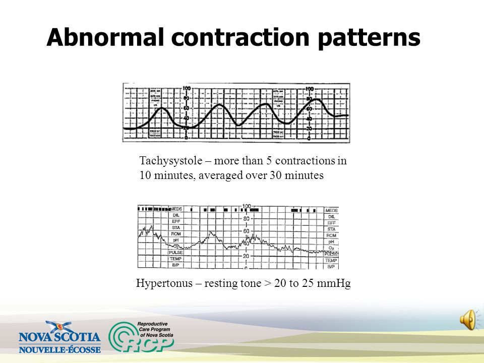 Abnormal contraction patterns Tachysystole – more than 5 contractions in 10 minutes, averaged over 30 minutes Hypertonus – resting tone > 20 to 25 mmHg