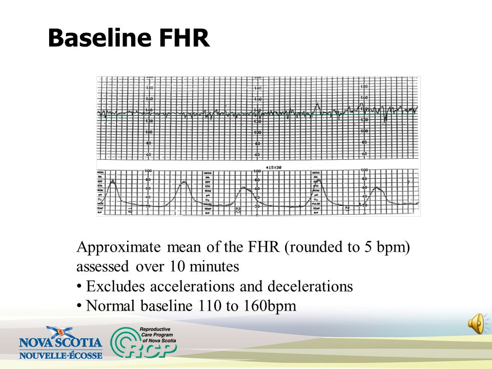 Baseline FHR Approximate mean of the FHR (rounded to 5 bpm) assessed over 10 minutes Excludes accelerations and decelerations Normal baseline 110 to 160bpm