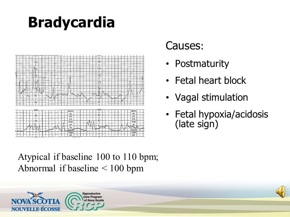 Bradycardia Causes : Postmaturity Fetal heart block Vagal stimulation Fetal hypoxia/acidosis (late sign) Atypical if baseline 100 to 110 bpm; Abnormal if baseline < 100 bpm