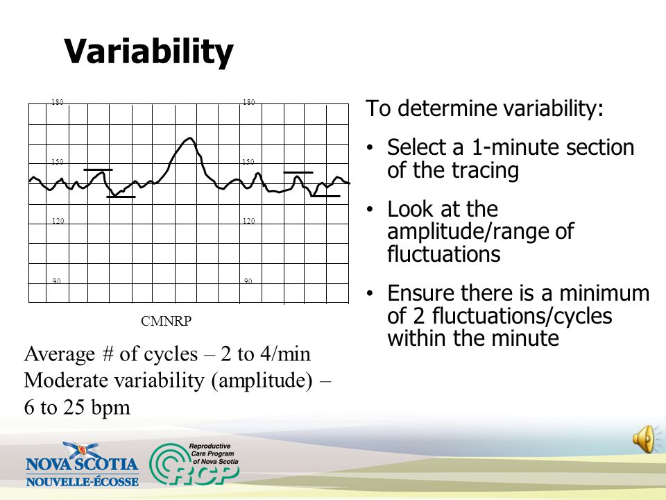 Variability To determine variability: Select a 1-minute section of the tracing Look at the amplitude/range of fluctuations Ensure there is a minimum of 2 fluctuations/cycles within the minute Average # of cycles – 2 to 4/min Moderate variability (amplitude) – 6 to 25 bpm 120 150 180 90 120 150 180 90 CMNRP