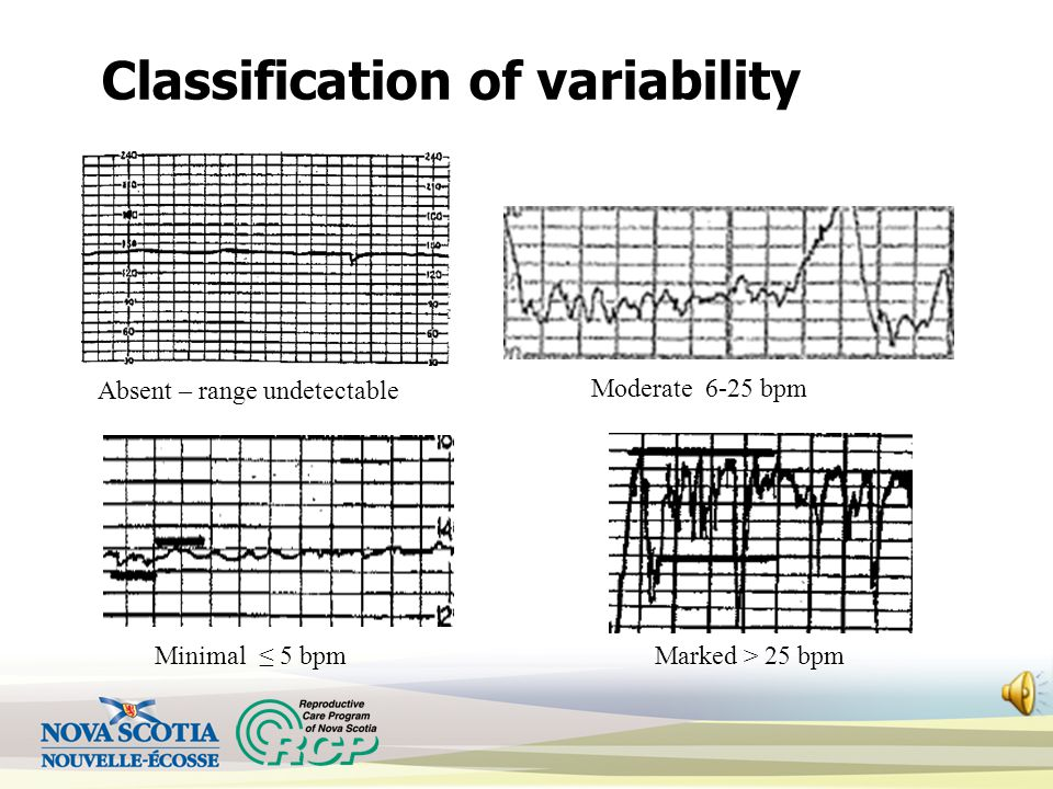 Classification of variability Absent – range undetectable Minimal ≤ 5 bpm Moderate 6-25 bpm Marked > 25 bpm