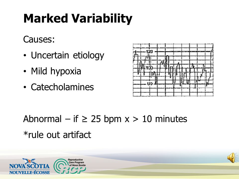 Marked Variability Causes: Uncertain etiology Mild hypoxia Catecholamines Abnormal – if ≥ 25 bpm x > 10 minutes *rule out artifact