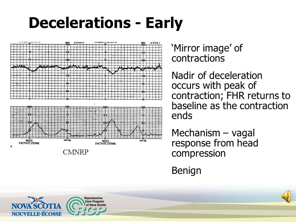 Decelerations - Early 'Mirror image' of contractions Nadir of deceleration occurs with peak of contraction; FHR returns to baseline as the contraction ends Mechanism – vagal response from head compression Benign CMNRP