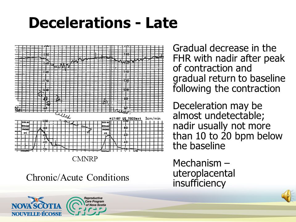 Decelerations - Late Gradual decrease in the FHR with nadir after peak of contraction and gradual return to baseline following the contraction Deceleration may be almost undetectable; nadir usually not more than 10 to 20 bpm below the baseline Mechanism – uteroplacental insufficiency CMNRP Chronic/Acute Conditions