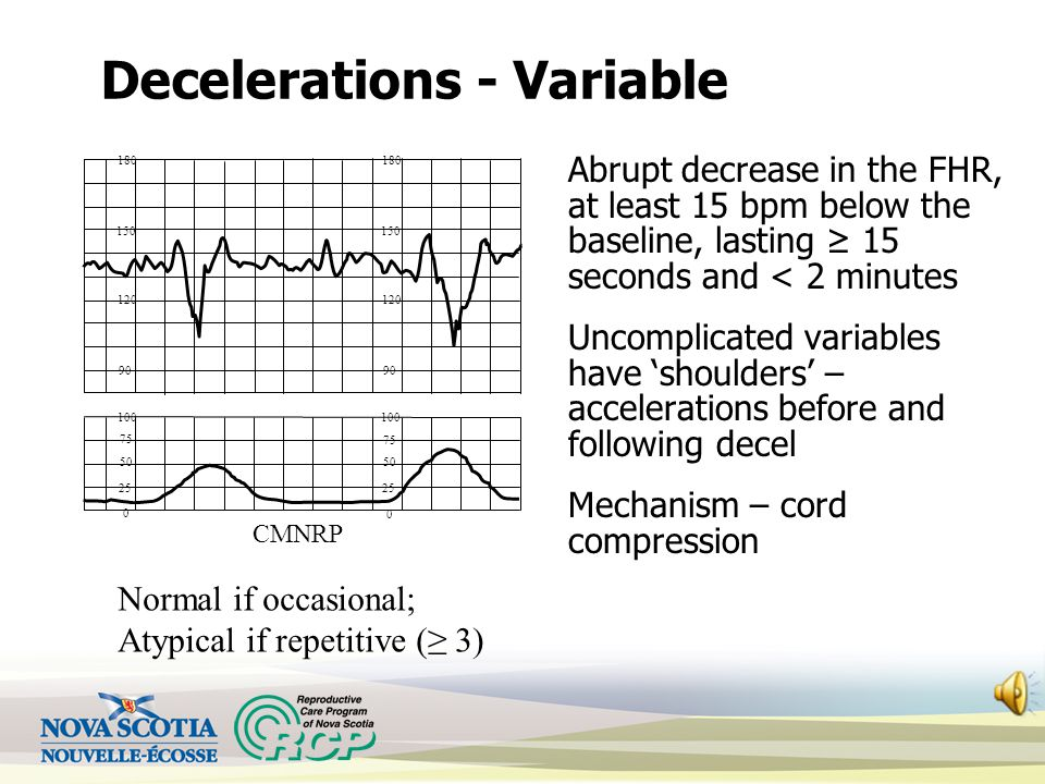 Decelerations - Variable Abrupt decrease in the FHR, at least 15 bpm below the baseline, lasting ≥ 15 seconds and < 2 minutes Uncomplicated variables have 'shoulders' – accelerations before and following decel Mechanism – cord compression 120 150 180 90 120 150 180 90 100 25 50 75 0 100 25 50 75 0 CMNRP Normal if occasional; Atypical if repetitive (≥ 3)