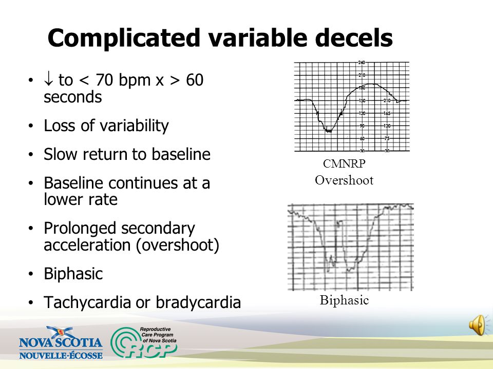 Complicated variable decels  to 60 seconds Loss of variability Slow return to baseline Baseline continues at a lower rate Prolonged secondary acceleration (overshoot) Biphasic Tachycardia or bradycardia Overshoot CMNRP Biphasic