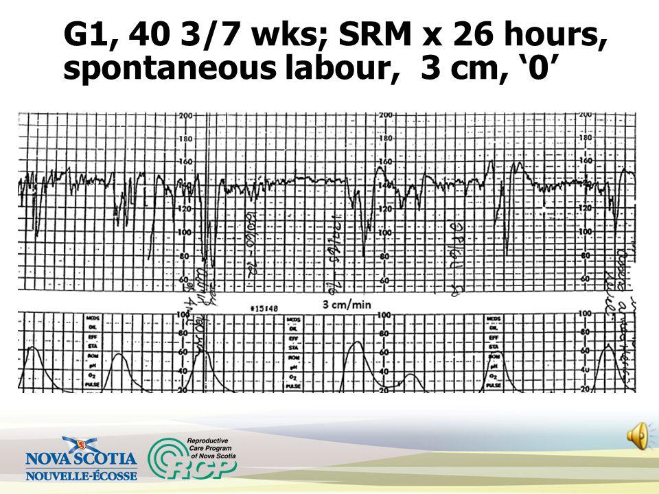 G1, 40 3/7 wks; SRM x 26 hours, spontaneous labour, 3 cm, '0'