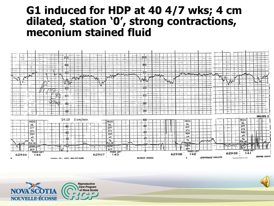 G1 induced for HDP at 40 4/7 wks; 4 cm dilated, station '0', strong contractions, meconium stained fluid
