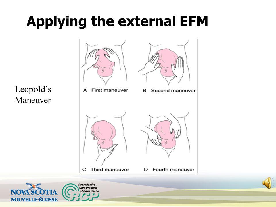 Applying the external EFM Leopold's Maneuver