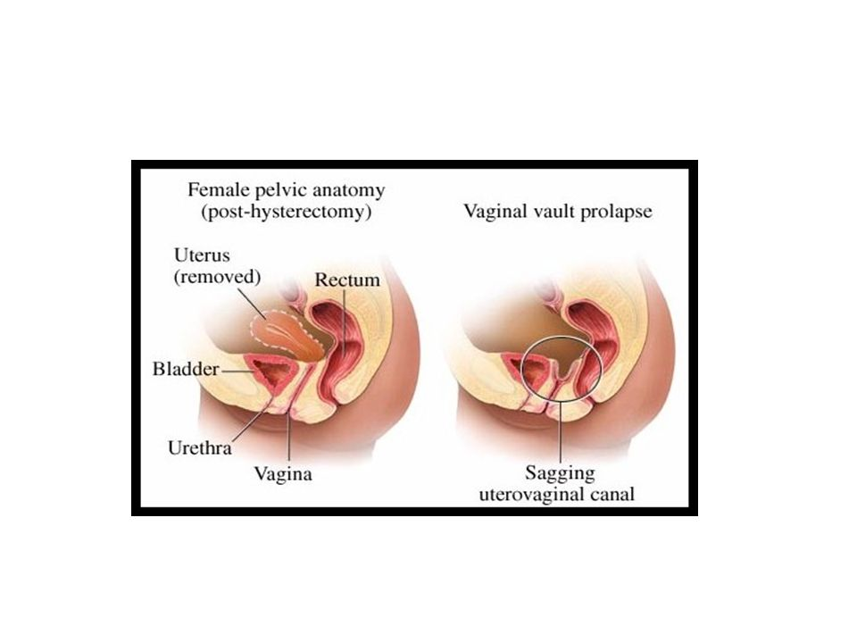 II) Uterine prolapse: 1)Utero-vaginal (the uterus descends first followed by the vagina): This usually occurs in cases of virginal and nulliparous prolapse due to congenital weakness of the cervical ligaments.