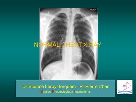 NORMAL CHEST X RAY. How to obtain a good quality chest radiography (1) 3 aspects are very important for good quality: The penetrating power of the x-ray.