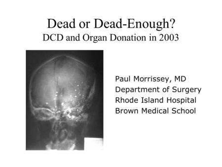 Dead or Dead-Enough? DCD and Organ Donation in 2003 Paul Morrissey, MD Department of Surgery Rhode Island Hospital Brown Medical School.