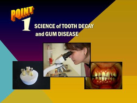 1 SCIENCE of TOOTH DECAY POINT and GUM DISEASE