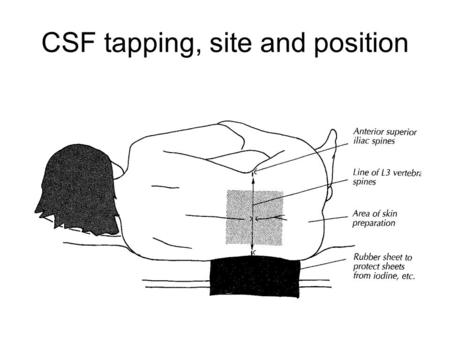 CSF tapping, site and position. Method of lumbar puncture 1) Carried out between L3-4 or L4-5 interspace located by the level of the iliac crest 2)