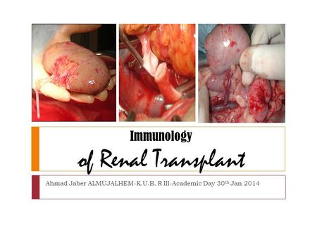 Immunology of Renal Transplant