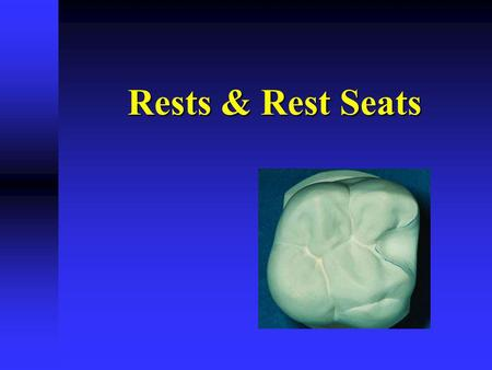 Rests & Rest Seats. Rest A rigid component resting in a recessed preparation on the occlusal, lingual or incisal surface A rigid component resting in.
