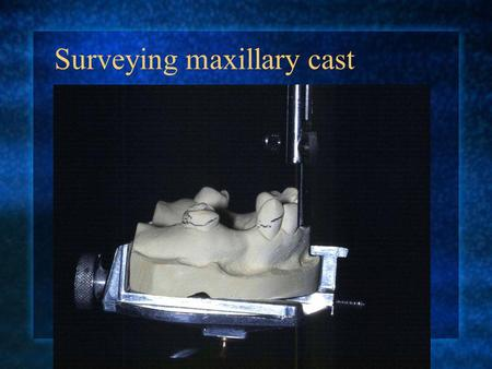 Surveying maxillary cast Mark the ideal survey lines.