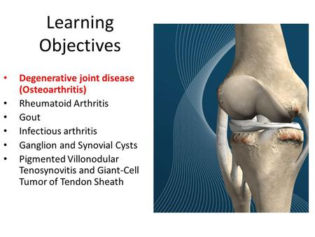 Learning Objectives Degenerative joint disease (Osteoarthritis)