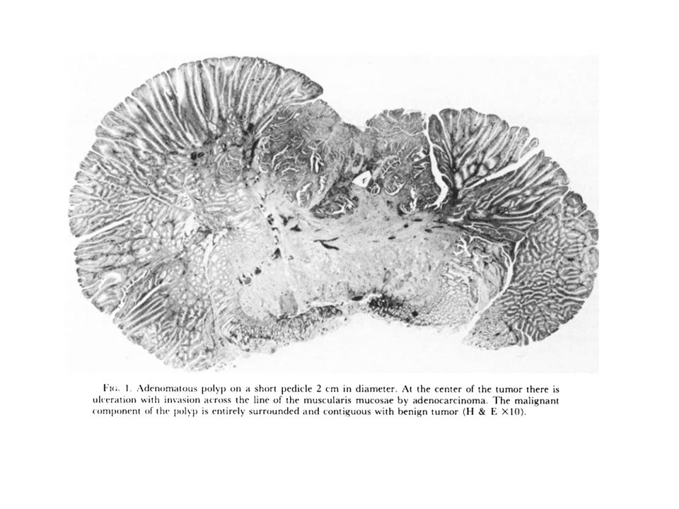 Morphology, Anatomic Distribution and Cancer Potential of Colonic Polyps.