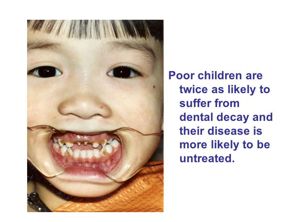 Savings in Early Dental Visits Average dental related costs birth to age 5 –Child's first visit before age 12 months $262 –Child's first visit between ages 1-2 $340 –Child's first visit between ages 2-3 $492 –Child's first visit between ages 3-4 $547 –Savage MF.