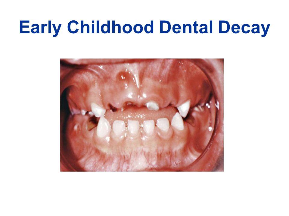 Adult Dental Decay