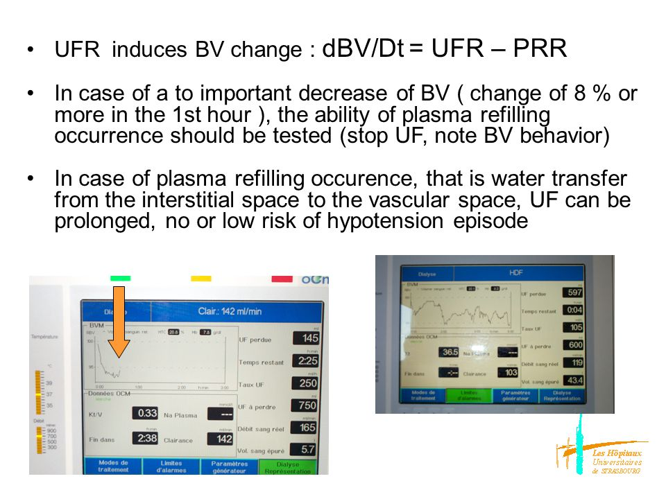 Plasma refilling rate is influenced by : changes in UF : rate, profile (intermittent+++) NaD increase : water shift from the interstitial to the vascular compartment ( transiet effect and, sodium « charge »risk) Dialysate cooling (vasoconstriction, balanced by compartment purification) Urea clearance reduction (less intracellular water shift)