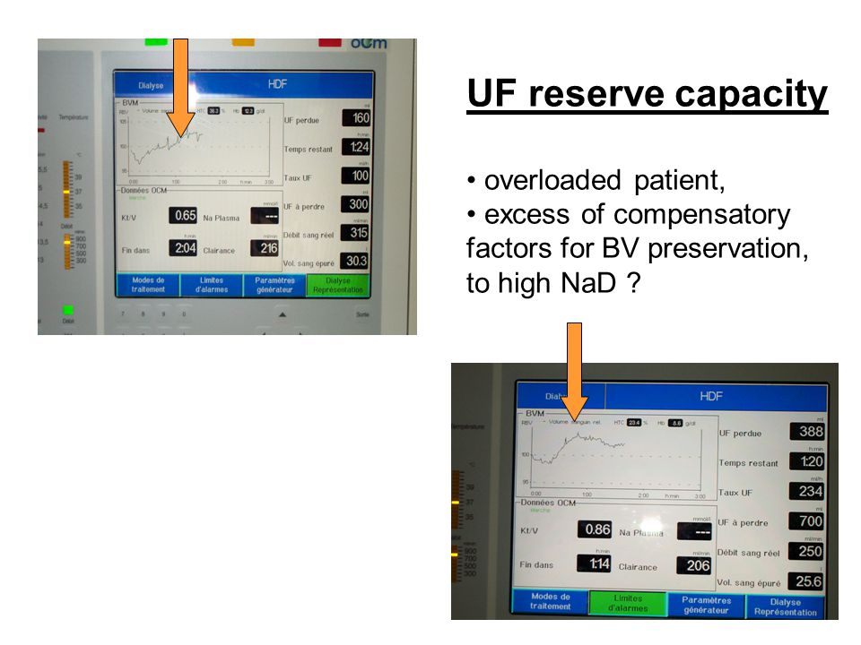 BVM over the dialysis session should be performed routinely in almost all children (each session) BVM allows an objective perception of compartment water recruitment for ultrafiltration (vascular refilling) BVM gives more information on UF rate than on UF total amount tolerance BVM could help for a more objective dialysis prescription - session duration, - Na D,T D, - UFprofile, - URR, dry weight goal