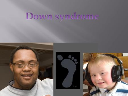 Down syndrome is a lifelong genetic disorder that cases lifelong mental retardation, development delays and other problems. Down syndrome varies in severity,