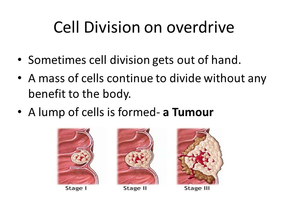 Benign Tumour A benign tumor does not affect the cells around it.