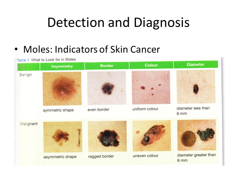 Detection and Diagnosis X-Rays: can detect cancer in bone, muscles and some organs.