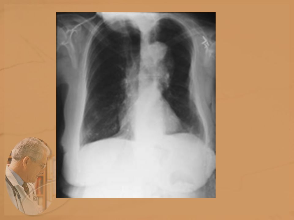 Implications for the Radiographer The patient becomes breathless and fatigues more easily.