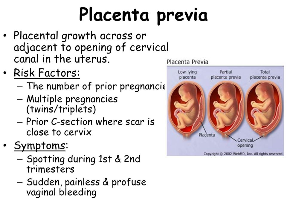 Ectopic Pregnancy Implantation of blastocyst anywhere other than within the uterus.