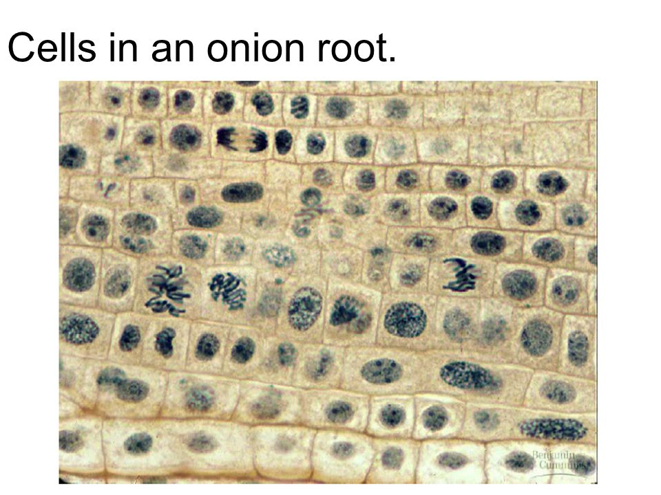 Cells in an onion root.