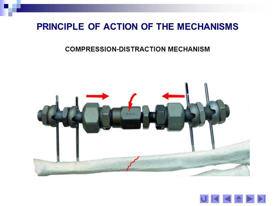 PRINCIPLE OF ACTION OF THE MECHANISMS The transferring modules have holes for the implant screws, their axes placed at an angle to the sphere axis.
