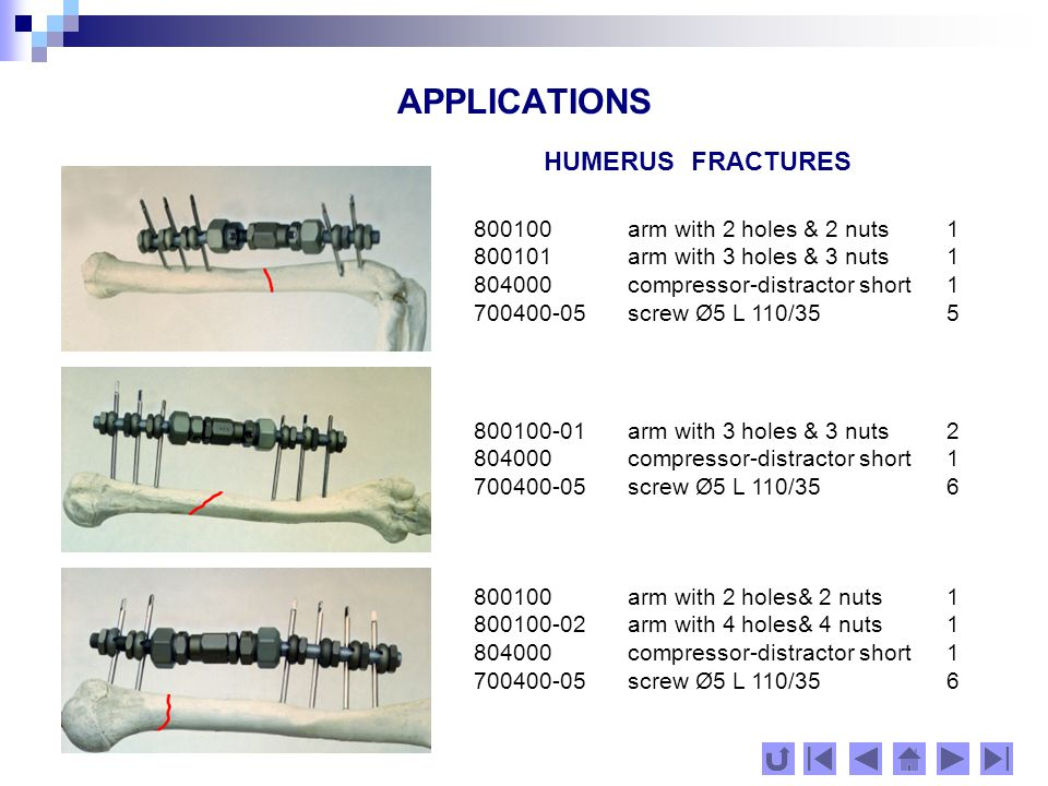 APPLICATIONS HUMERUS FRACTURES 800100 arm with 2 holes & 2 nuts1 804000 compressor-distractor short 1 801100 module transferring 1351 700400-07 screw Æ 5 L 120/402 701000-11 screw Æ 6 L 140/40 with 2nuts2 800100-01 arm with 3 holes & 3 nuts1 804000-01 compressor-distractor long1 801000 module transferring 901 700400-07 screw Æ 5 L 120/403 701000-07screw Æ 6 L 120/40 with 2 nuts2